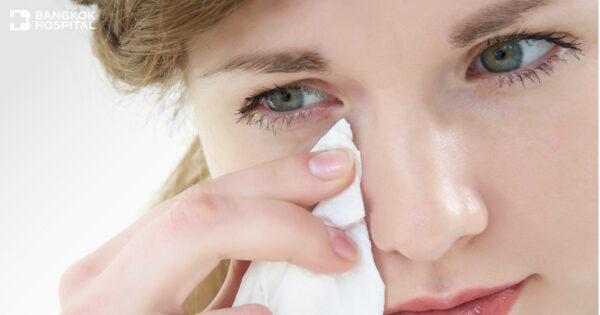 ท่อน้ำตาตันในผู้ใหญ่