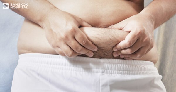 Obesity increases the risks for developing recurrent hernias.