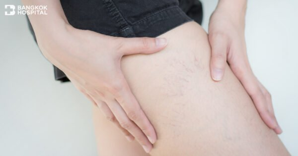 Early Treatment Helps to Terminate Varicose Veins