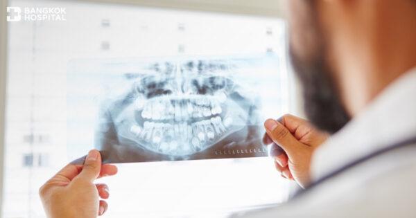 5 เรื่องที่คุณอาจไม่เคยรู้เกี่ยวกับ Maxillofacial Surgery