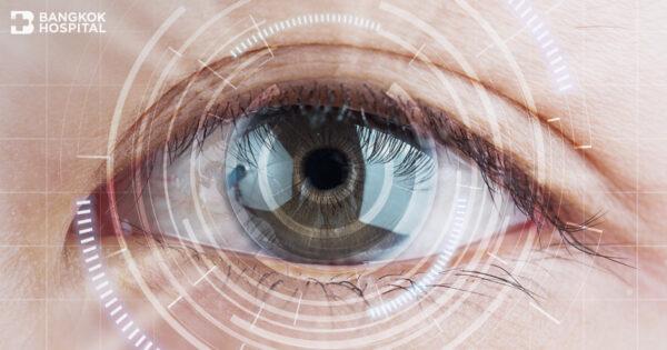การผ่าตัดรักษาต้อกระจกและเลนส์แก้วตาเทียมชนิดต่าง ๆ