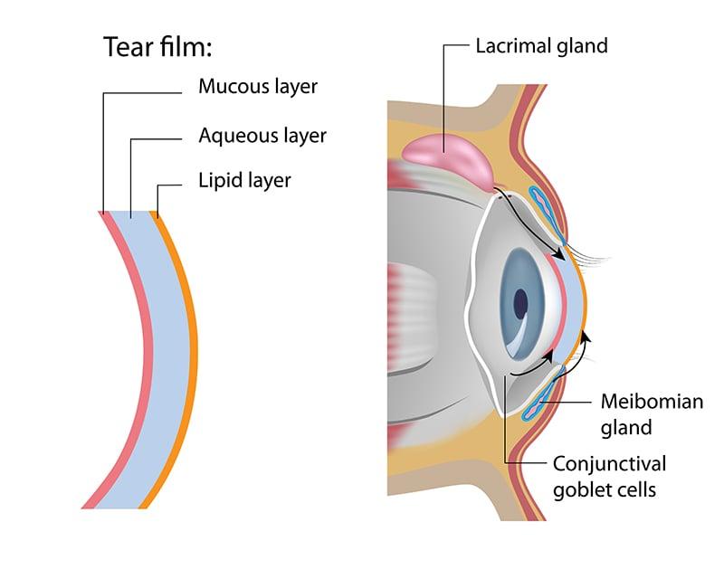 ต่อมไขมันที่เปลือกตาอุดตัน หนึ่งในตัวการโรคตาแห้ง