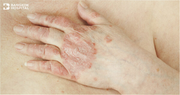 Psoriatic arthritis can potentially lead to permanent deformity and disability.