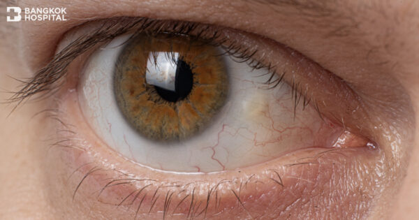 Pinguecula and pterygium – The common degeneration of the conjunctiva