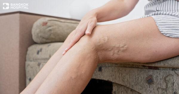 ภาวะหลอดเลือดดำบกพร่องเรื้อรัง (CVI) รีบรักษาก่อนลุกลามเกินเยียวยา