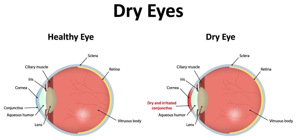 ตาแห้ง โรคชวนกวนใจ