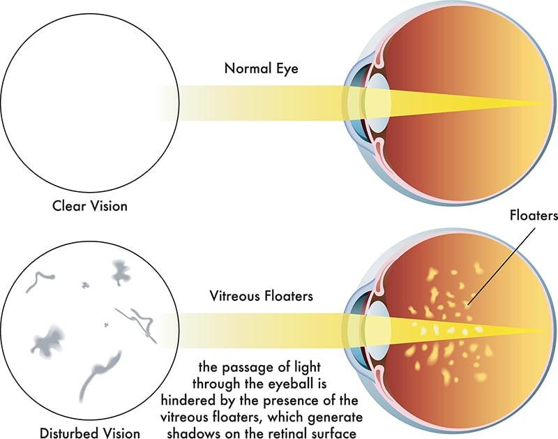 วุ้นตาเสื่อม ภัยเงียบทำร้ายดวงตา