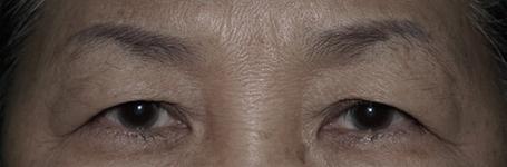 หนังตาตก รีบรักษาก่อนเสียความมั่นใจ